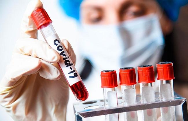 В Олександрії зменшується кількість захворювань на COVID