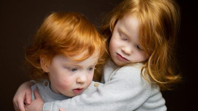 В Олександрії влаштовують фотоконкурс для рудоволосих дітей