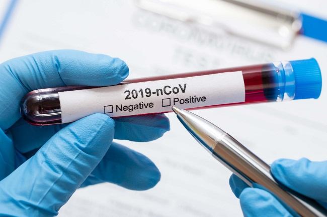 Оперативна інформація щодо поширення коронавірусу та пневмонії
